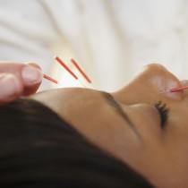 Akupunktur, Alternativmedizin, Schmerzbehandlung